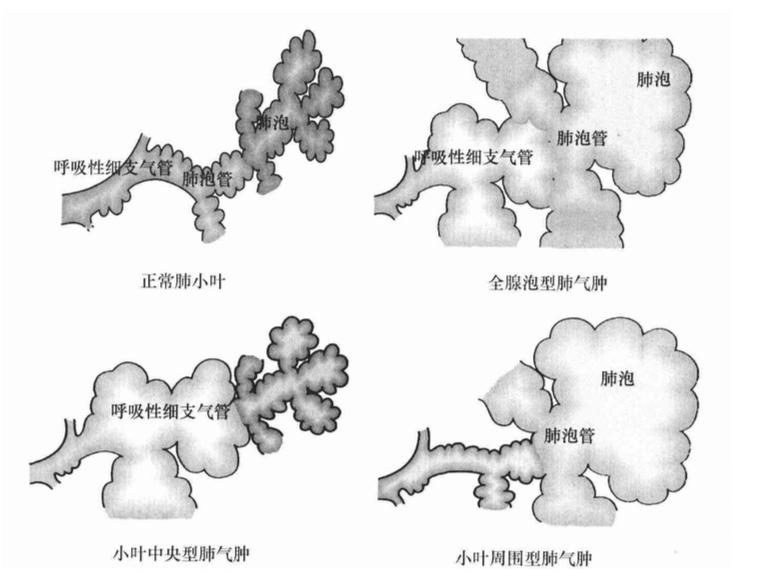 肺泡超微结构模式图